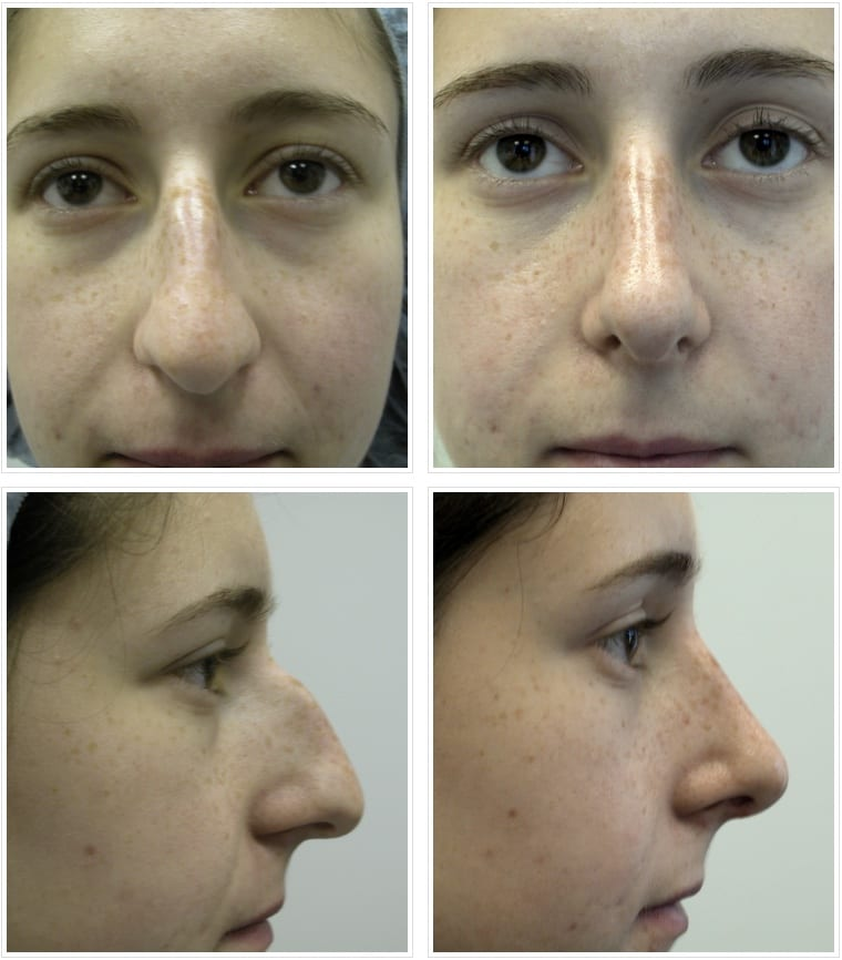 rhinoplasty chicago illinois
